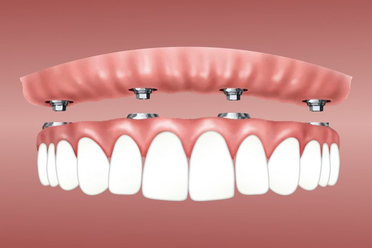 Implanty zębowe – luksus czy konieczność?